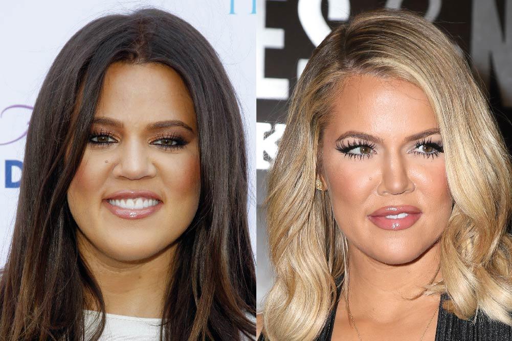 Has Khloe Kardashian had cosmetic surgery?