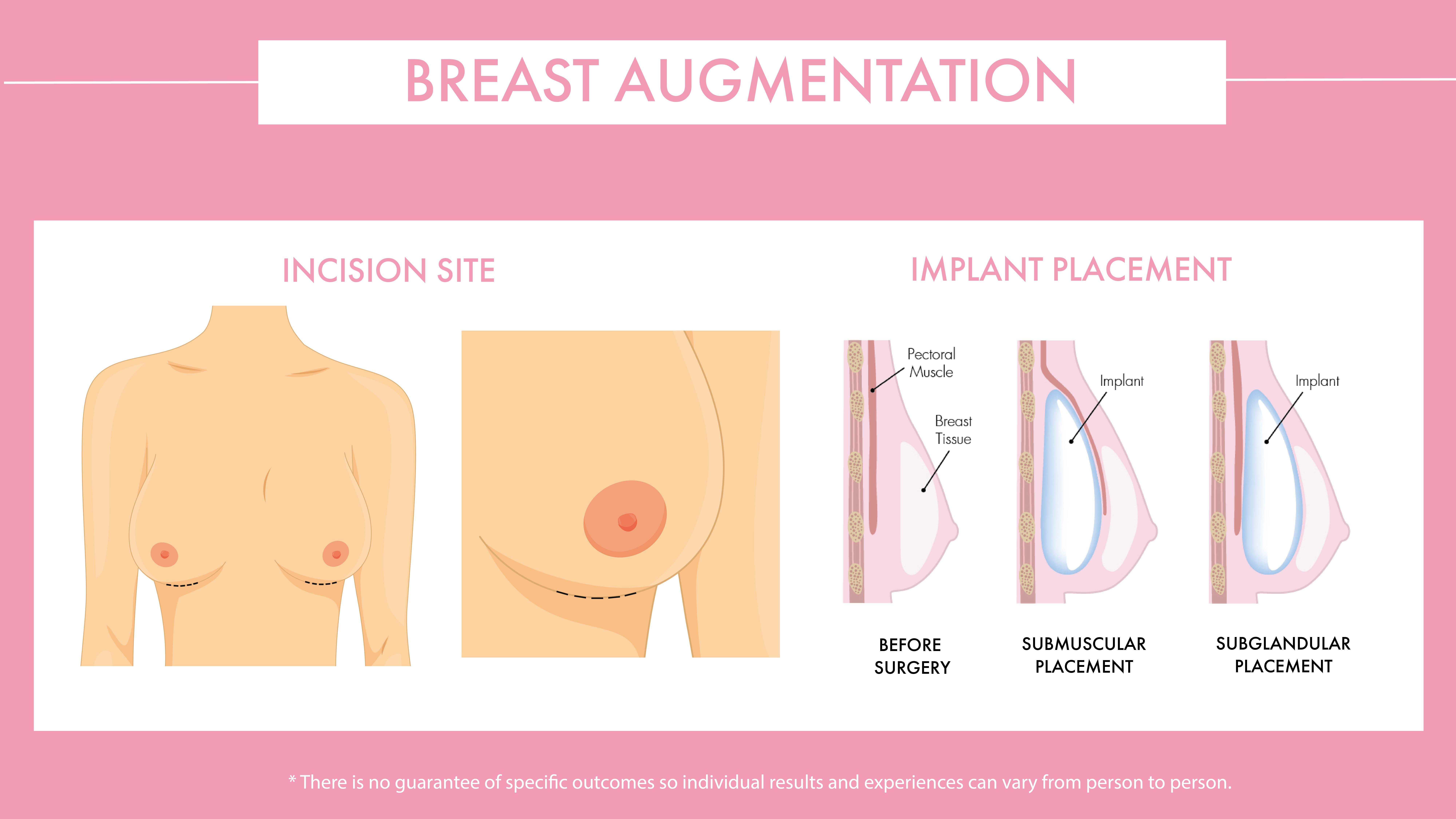 Breast enlargement procedure diagram