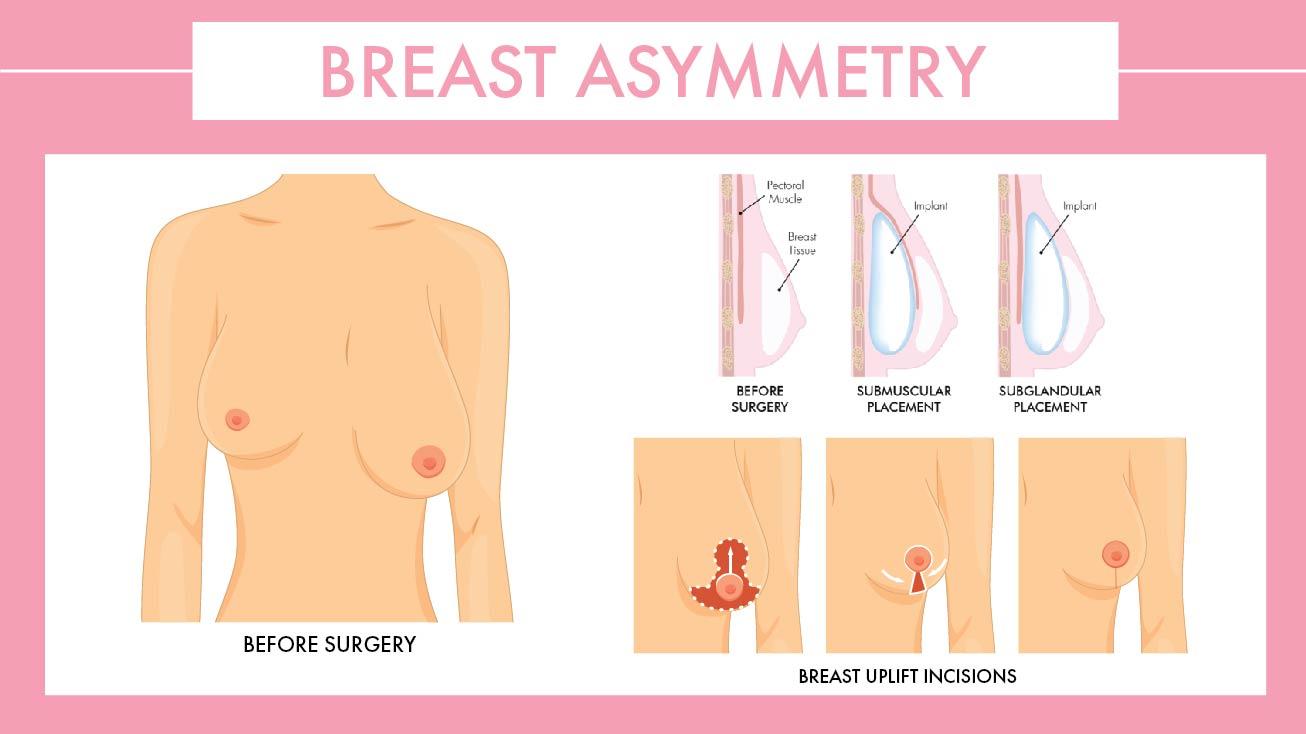 Breast Asymmetry diagram