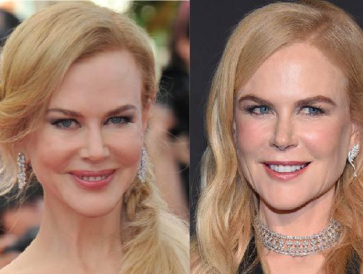 Has Nicole Kidman had cosmetic surgery?